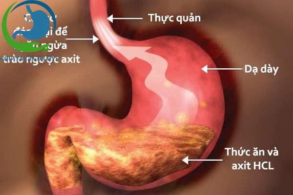 Sử dụng Mosapride US cải thiện tình trạng thức ăn lưu trữ trong dạ dày