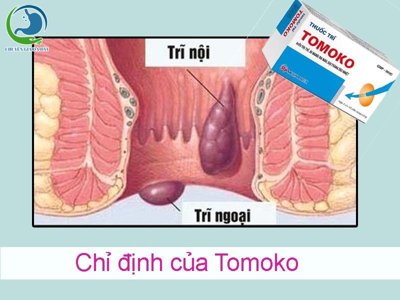 Chỉ định của thuốc trĩ Tomoko