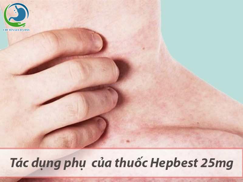 Thuốc Hepbest gây tác dụng phụ phát ban, đỏ ngoài da