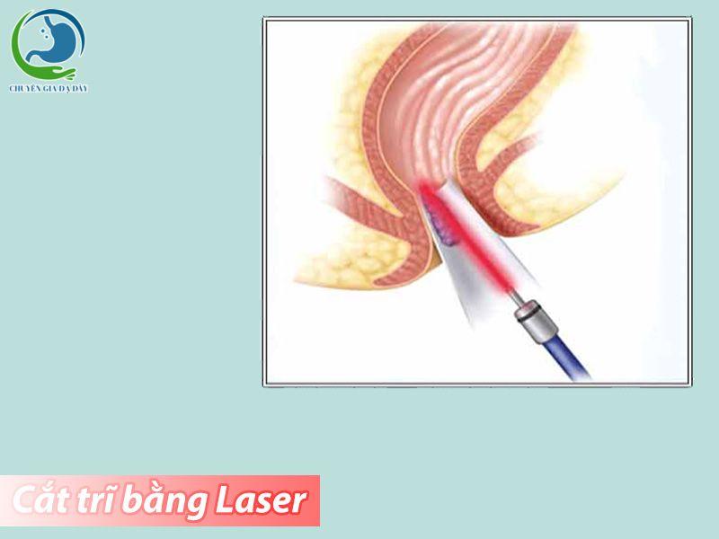 Phương pháp cắt trĩ bằng Laser.
