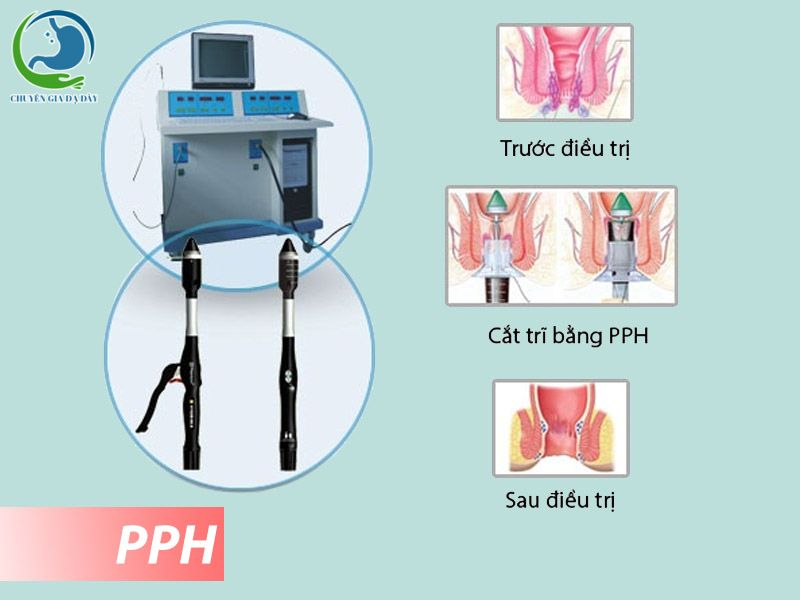 Cắt trĩ bằng phương pháp PPH.