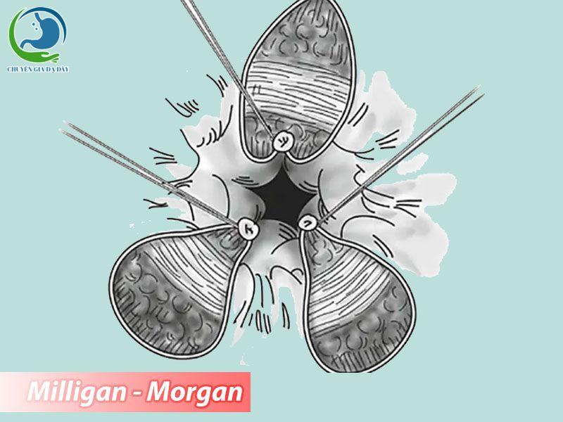 Phương pháp Milligan - Morgan có thời gian phẫu thuật thường dài hơn các phương pháp hiện đại khác