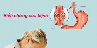 Biến chứng của bệnh trào ngược dạ dày - thực quản