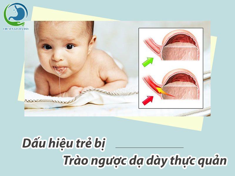 Dấu hiệu trẻ bị trào ngược dạ dày thực quản