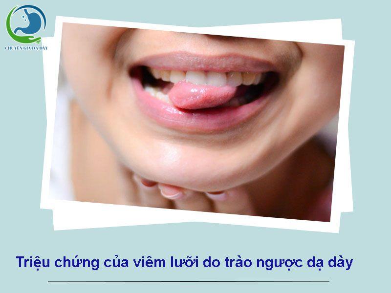 Triệu chứng của viêm lưỡi do trào ngược dạ dày