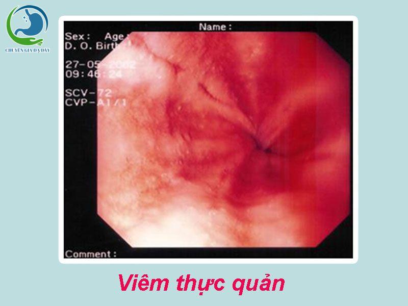 Hình ảnh nội soi viêm thực quản