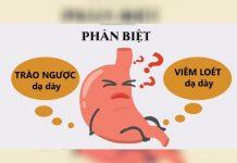 Phân biệt đau dạ dày và trào ngược dạ dày