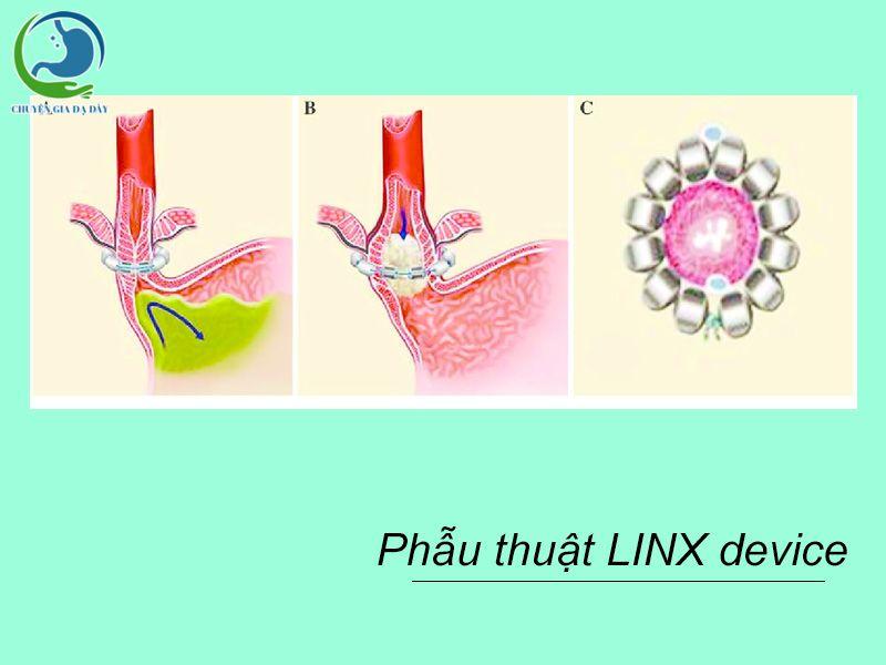 Phương pháp phẫu thuật LINX device chữa trào ngược dạ dày